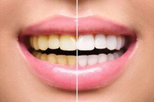 Cum se albesc dinții în fotografii?