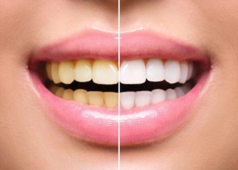 Cum se albesc dinții în fotografii