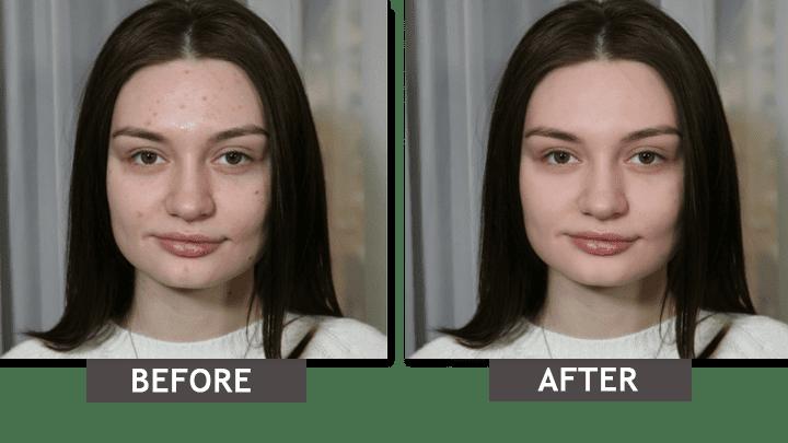 Îndepărtați imperfecțiunile pielii din fotografie: Înainte-După